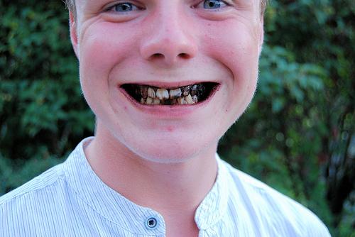 Традиционные сонники трактуют сны, в которых мы видим гнилые зубы, очень широко.