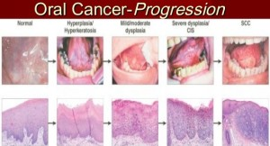 The Warning Signs & Symptoms of Mouth Cancer | Emergency ...Early Signs Of Oral Cancer Pictures